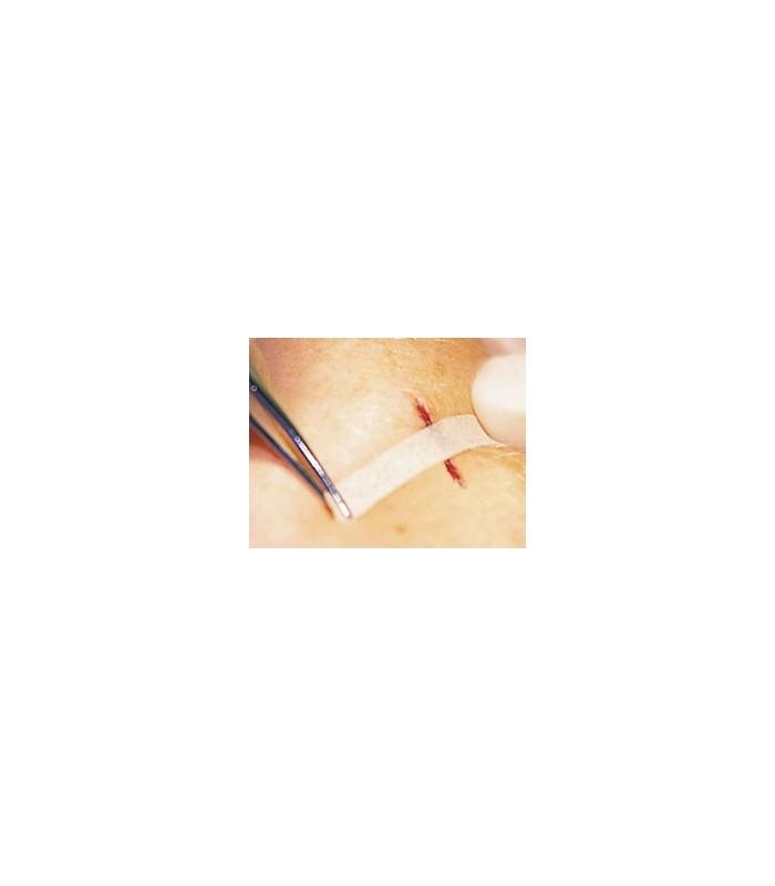 Omnistrip Plasture Pentru Inlocuirea Suturilor Chirurgicale