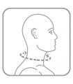 Guler cervical rigid cu orificiu traheal